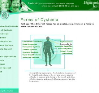 Dystonia Ireland Website Design