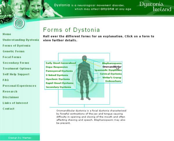 Dystonia Ireland Website Design